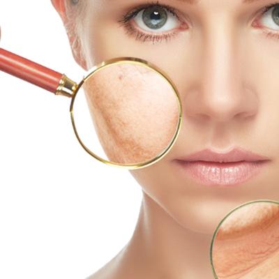 badanie skory analiza katowice - Clover Cosmetics - Kosmetyki spersonalizowane. Analiza skóry. Produkcja naturalnych kosmetyków